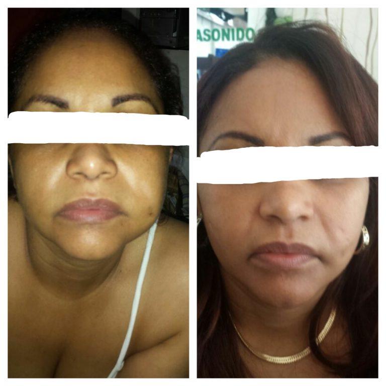 Eliminacion Biopolimeros Face Picture 3
